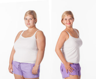 before and after weight loss with hypnosis