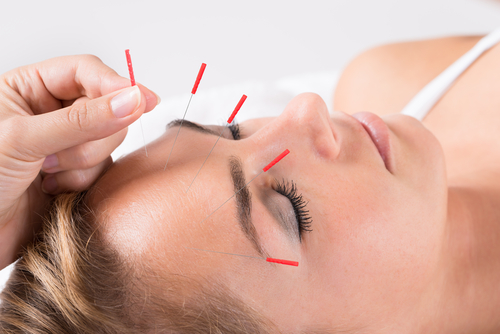Acupuncture Sudbury MA for Stress Management